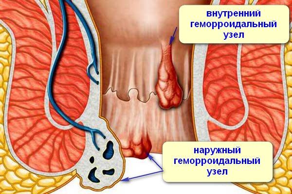 кровь при геморрое при беременности