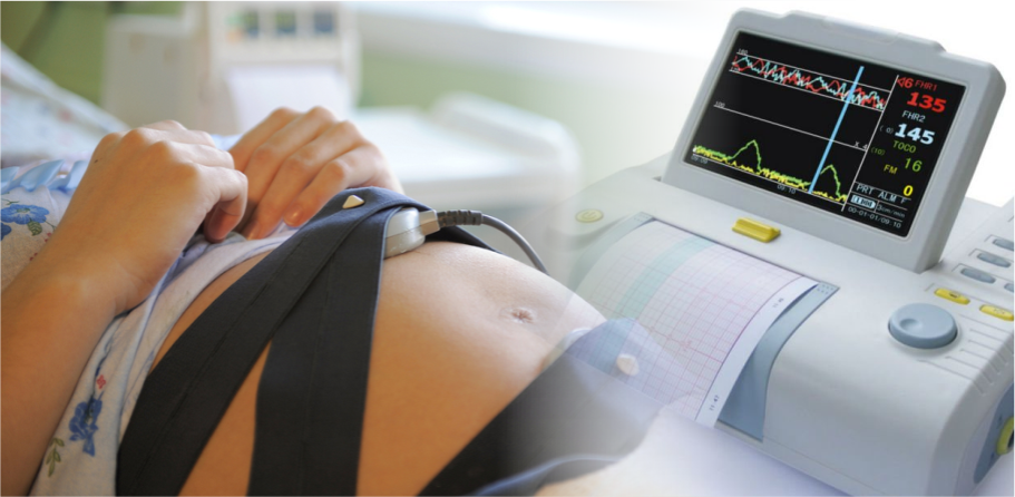 Ктг при беременности как проходит