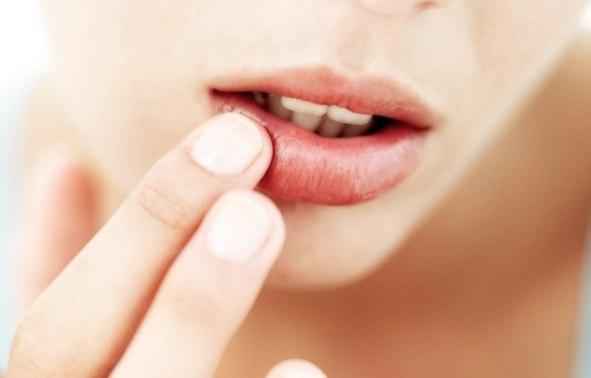Болячка на губе