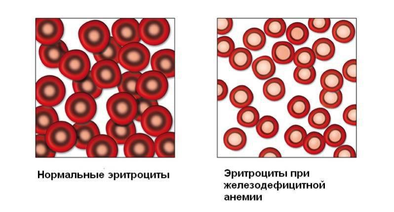 Анемия легкой степени при беременности что это