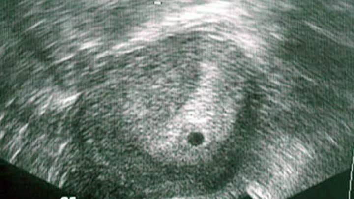 Узи на 2 неделе беременности