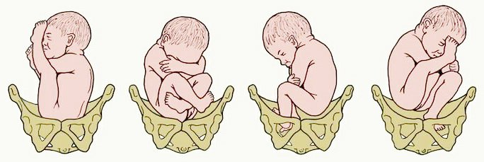 На 34 неделе беременности тазовое предлежание