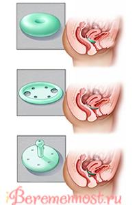 Пессарий при беременности как ставят фото