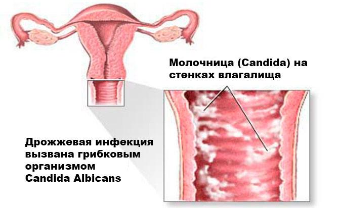 Молочница при беременности ⇒ опасность, симптомы, чем лечить кандидоз